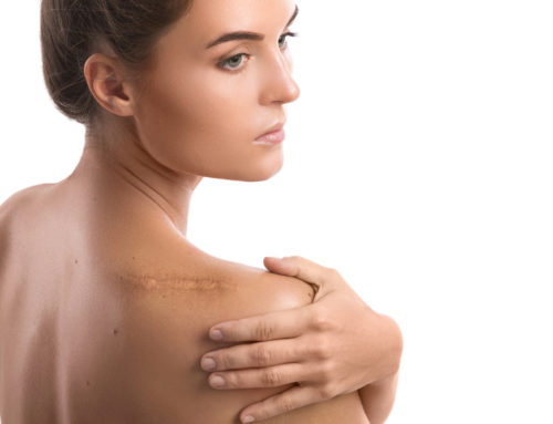 Scars: Different Types & How to Treat Them